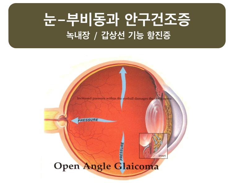 눈-부비동과 안구건조증